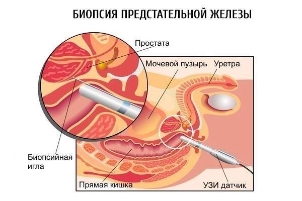 как проводится биопсия предстательной железы
