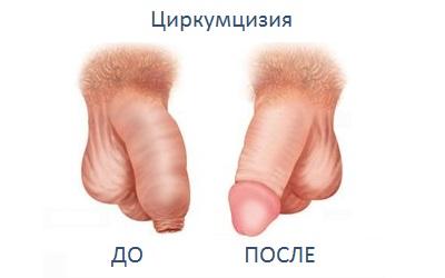 Мужской член физиология обрезание